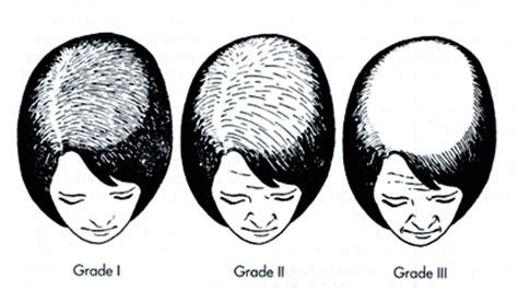 female pattern hair loss a clinical and pathophysiological review referencias