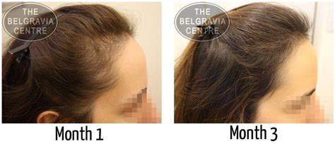 women balding on crown women s hair loss treatment success stories