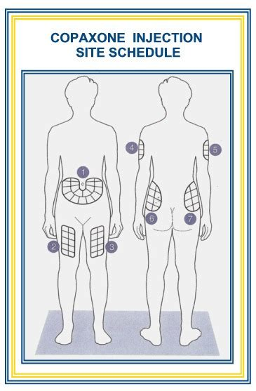 Printable Insulin Injection Sites Diagrams Insulin Site Rotation Template