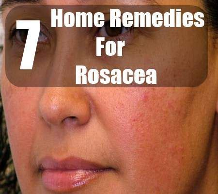 17 best ideas about rosacea remedies on