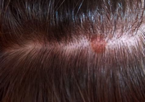 scalp itching and sores itchy rash on scalp pictures photos