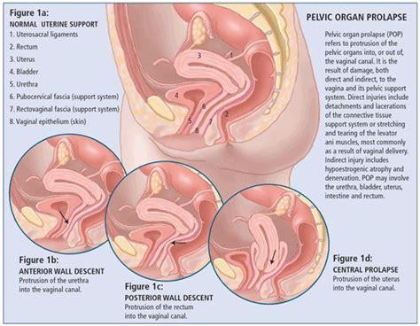 diagram of prolapsed uterus 15 best pelvic organ prolapse images on health