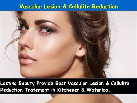 Laser Hair Removal Waterloo Kitchener by Kitchener Waterloo Laser Hair Removal Therapy Lasting