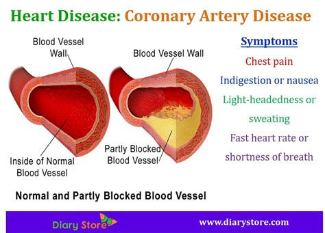 shortness of breath light headed heart diseases types symptoms risk factors prevention