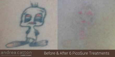 picosure tattoo removal leeds picosure 174 tattoo removal uk andrea catton laser clinic