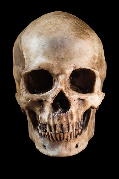 skull images royalty free rotten teeth from not brushing pictures