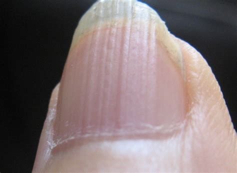 receding nail bed receding nail bed receding nail bed 28 images the ultimate