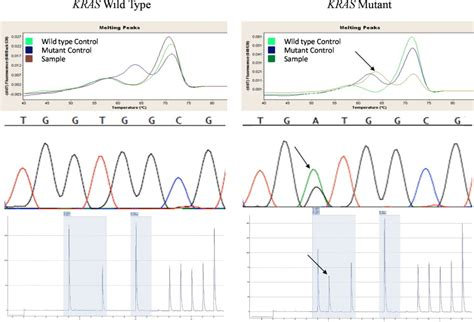 pattern comparison meaning comparison of sanger sequencing pyrosequencing and
