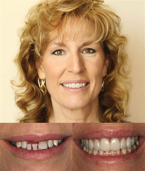 comfort dental parker colorado implants periodontal disease christine theroux dds