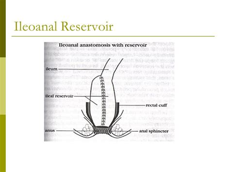 bowel diversion stoma temporary or permanent artificial