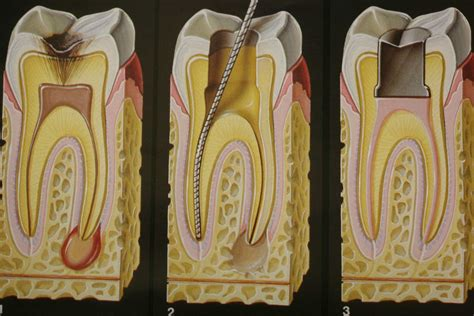 root canal diagram millennium dental san antonio dentist root canals