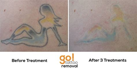 tattoo removal baltimore 100 baltimore removal 11 photos a change of