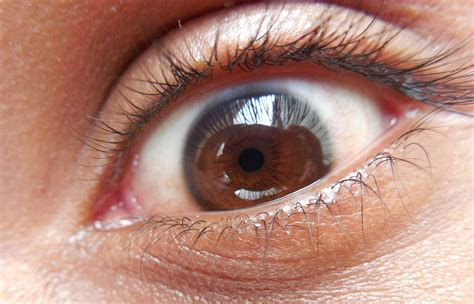 eye problems image gallery human eye problems