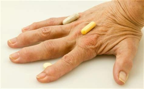 artrite reumatoide dieta alimentare artrite reumatoide psoriasica o reattiva percorso
