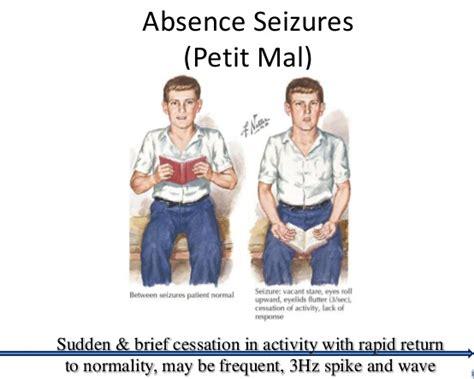 signs of a seizure in a image gallery seizure symptoms
