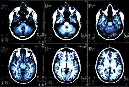 cura sclerosi multipla nicoletta mantovani ma funziona davvero la cura zamboni fondazione umberto