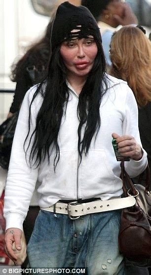 peter ostrum dead or alive pete burns displays painful looking swollen face after