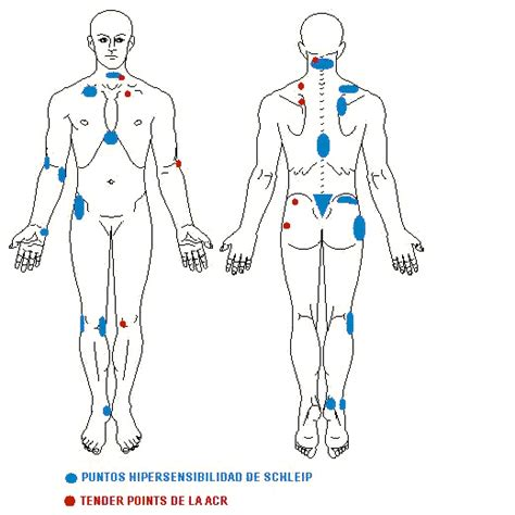 fibromyalgia tender spots diagram fibro trigger points diagram fibromyalgia causes what do