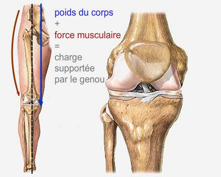 condropatia femoro tibiale interna d 233 finition de l arthrose interne