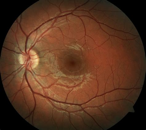 fundus exam findings macular degeneration baton rouge la ophthalmologist