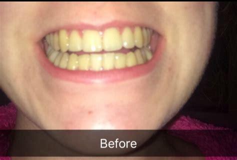 tooth whitening  eccleshill dental dentist bradford