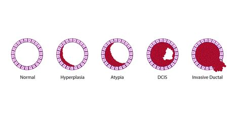 Latest Dcis Breast Cancer News And Research Dcis Mystory | effective treatment for dcis is vital for continued