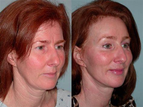 lower face and neck lift facelift neck lift plastic surgery santa rosa artemedica