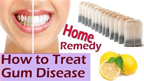 gum disease treatment how to stop bleeding gums best