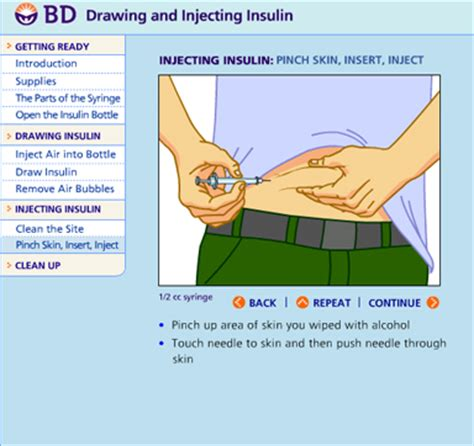 insulin administration diagram insulin injection site diagram insulin regulation