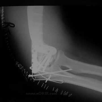 below knee utation incision care post foot surgery circuit diagram maker
