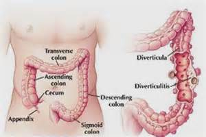 Photos of Pain With Acute Diverticulitis