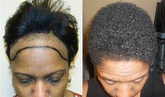 hairline restoration for black african american woman patients page dr brett bolton
