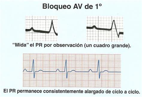 bloqueo de segundo grado electrocardiograma y medicina general bloqueos aur 237 culo
