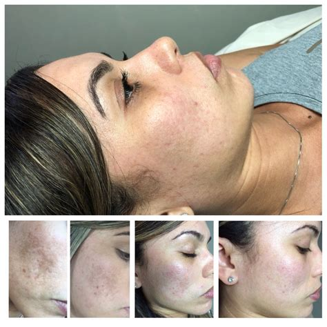 laser tattoo removal puerto rico dermalosophy 94 photos laser hair removal av de
