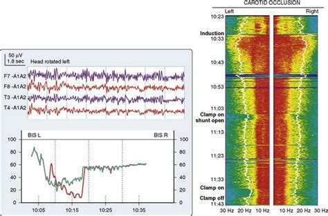 multivariate pattern analysis eeg central nervous system monitoring anesthesia key