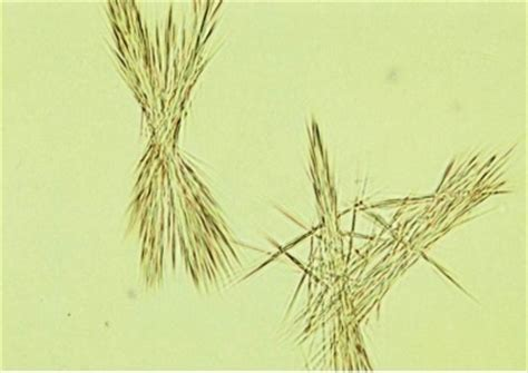 crystals in urine types of crystals found in human urine and their clinical significance