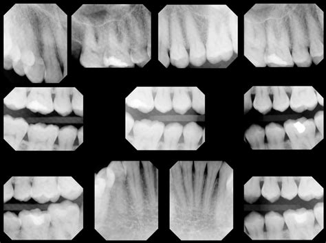 how much are x rays how much radiation do i get from a dental x and how does it compare to other