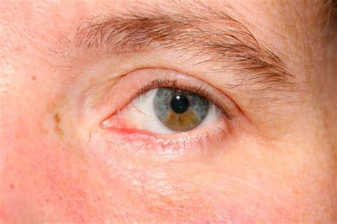 eyelid tumor eyelid skin cancer photographs