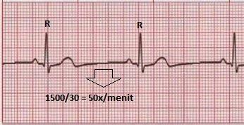 Cara Mudah Membaca Ekg cara cepat membaca elektrokardiogram ekg sholehshare