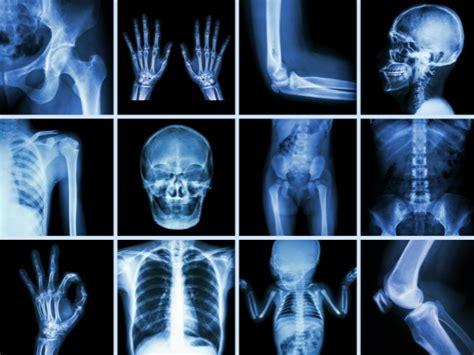 imagenes medicas rayos x c 243 mo mantener tus huesos sanos belleza y bienestar