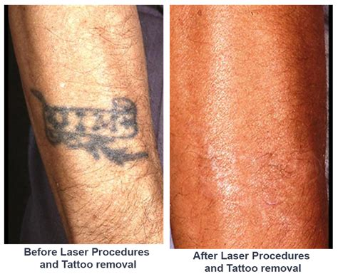 tattoo removal steps laser procedures removal by dr freeman only
