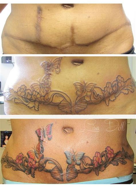 tattoos to cover tummy tuck scars 17 best ideas about tummy tuck on tummy