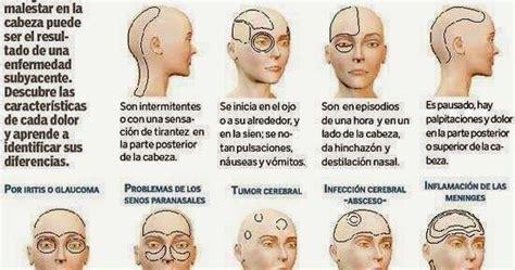 dolor cuero cabelludo un dolor de cabeza es un dolor o molestia en la cabeza el