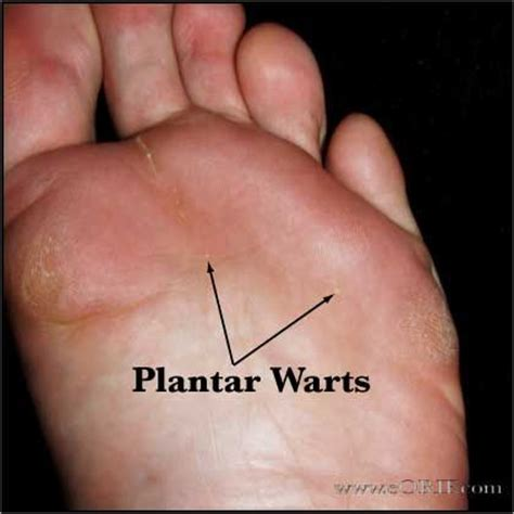 Planters Warts Pictures
