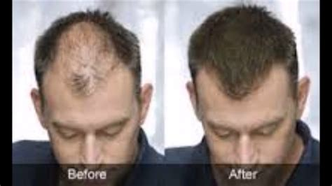 hair loss help forums avodart and panic attacks anxiety seborrheic dermatitis hair loss before and after