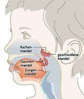 ohr innen geschwollen schwellung am hals ursachen geschwollene lymphknoten