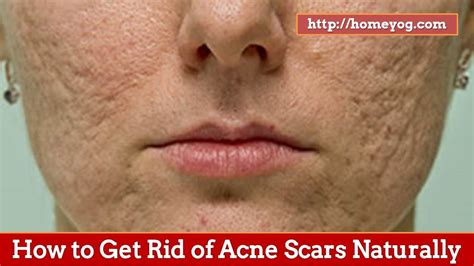 How To Get Rid Of by How To Get Rid Of Acne Scars Naturally Top 10 Home