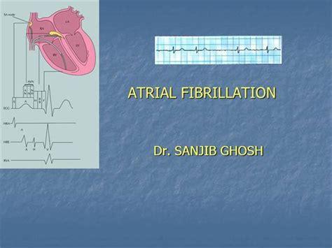 atrial fibrillation diagram atrial fibrillation diagram images