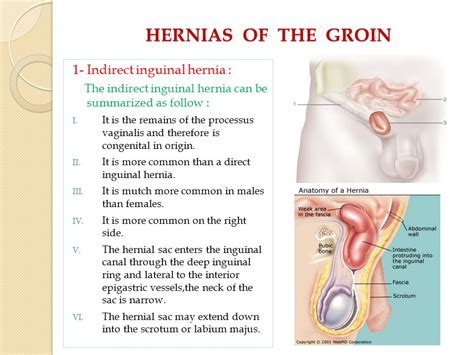 about your hernia inguinal hernia symptoms causes abdominal herniae a weiss m d ppt video online download