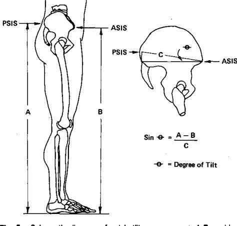 figure   pelvic tilt intratester reliability  measuring  standing position  range